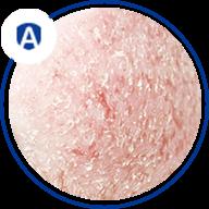 Atopowe zapalenie skóry - ikona
